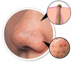 Bella Terra Mineral Cosmetics Pores2